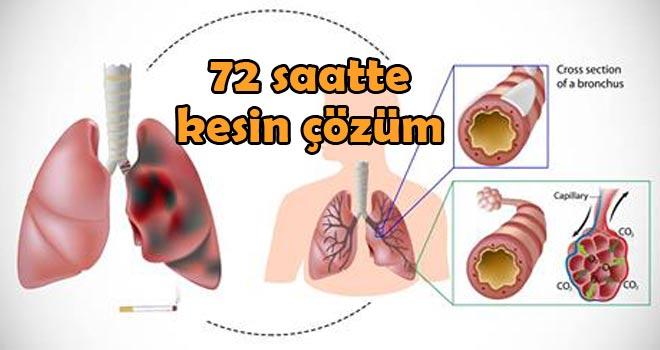 Sigara kullanıyorsanız, alkol içiyorsanız, gün boyu havasız dumanlı ortamda çalışmak zorunda iseniz Akciğerlerinizi temizlemeniz şart! İşte 72 saatte Akciğer temizliği nasıl yapılır adım adım anlatımı.