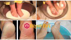 Topuk çatlaklarına süt kabartma tozu tedavisi
