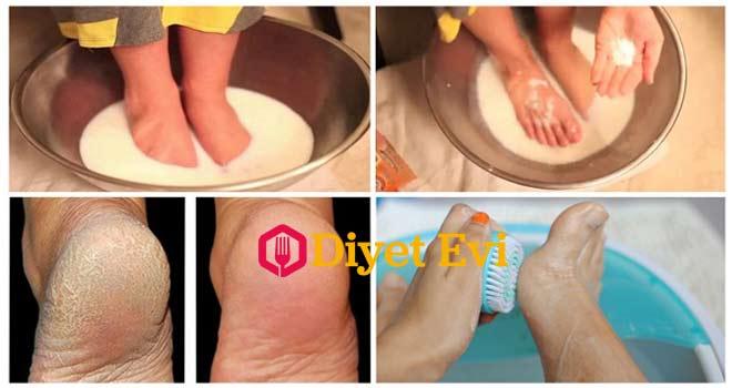 Topuk çatlaklarına süt kabartma tozu tedavisi ile pediküre bir sürü para harcamanıza gerek kalmayacak. Devam etmek için görsele tıklayın