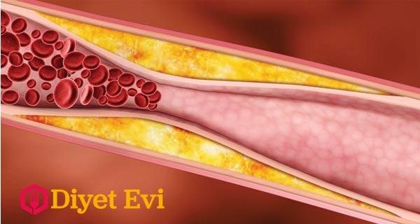 Bu içeceğin temel maddesi kabak. Kabakta bulunan lifli hücreler ve sahip olduğu zengin A vitamini, yüksek miktarda demir, çinko gibi minaraller kan şekeri ve kolesterol üzerinde oldukça etkilidir. Çiğ kabaktan elde edeceğimiz içecek bizim sağlıklı günlere kavuşmamızda ki en önemli dostumuz olacaktır. Şimdi bu kabaktan yapılan içeceğin malzemelerini okumak için için görsele tıklayarak 3. fotoğrafa geçin.