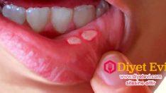 Doğal yolla ağızdaki aft tedavisi nasıl yapılır