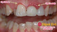 Diş Eti Hastalığının Tedavisinin 8 Doğal İlacı diş eti