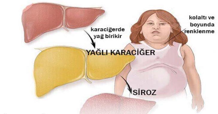 Karaciğer yağlanmasını nasıl anlarız
