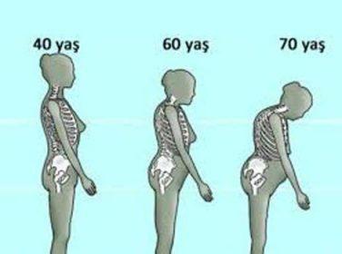 Kemik erimesine doğal çözüm