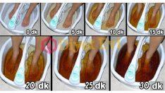 Ayak detoksu ile vücuttan zehirli toksinleri atmak