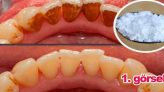 Diş beyazlatan Sarı diş plağı ve diş tartarını yok eden karışım