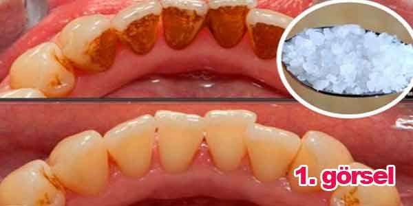 Diş beyazlatan Sarı diş plağı ve diş tartarını yok eden karışım : Yemekler dişlerinize mineral biriktir ve tartar oluşturur, tartarlar tedavi edilmediği takdirde diş eti hastalıklarına ve diş çürümesine neden olur. Dişçiye gitmek diş problemlerinin üstesinden gelmenin en iyi yoludur, ancak evde de bu işlemi yapabilirsiniz, üstelik çok daha az maliyetli. Bunu yapmak için kolayca bulunabilen bazı doğal içerikler gerekir. Gerekli malzemeler için görsele tıklayın.