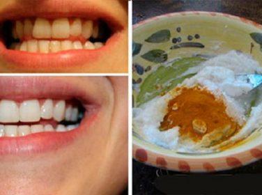 Diş beyazlatan Zerdeçal Hindistancevizi yağı Nane yağı karışımı