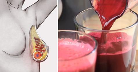 Kanseri önleyen kırmızı pancar havuç elma suyu : Bu karışımı 6 gün yapın ve vücudunuz temizlensin kan değerleriniz normale gelsin, tansiyon derdinden kurtulun ve en önemlisi kırmızı pancar detoksu kanseri önleyen mucize içecek olarak bütün doktorlar tarafından kabul edilmiştir. Pancar detoksunu daha önce yapmadıysanız bugün bu detoksa başlamalısınız çünkü çok güçlü bir antioksidan ve detoks etkisine sahip bu karışım ile kalp ve kanser hastalıkları, kabızlık, tansiyon gibi pek çok şikayetin ilacıdır. Mucize içeceğinizin yapılışına geçmek için görsele tıklayın ve .2 fotoğrafa geçin.