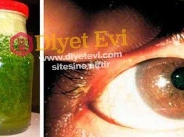 Göz bozukluğunu düzelten tedavi
