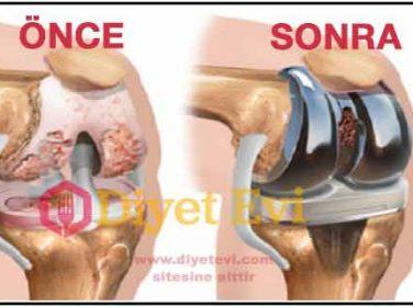 Eklem diz ağrılarını geçiren doğal tedavi yöntemi