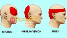 Baş ağrısını 5 dakikada geçiren yöntem