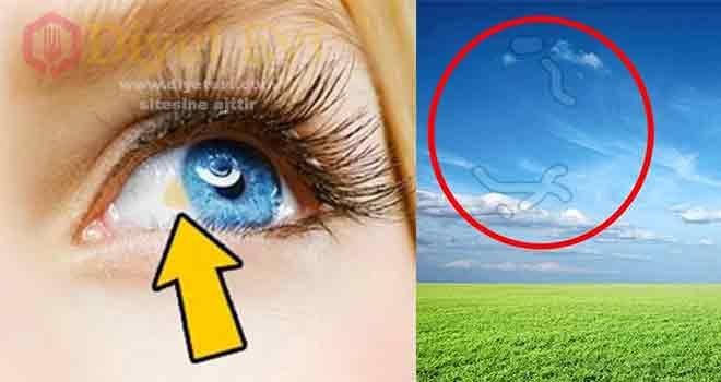 Gözlerinizin genel sağlığınız hakkında verdiği 12 ipucu Gözlerinizin genel sağlığınız hakkında verdiği 12 ipucu:Zaman zaman herkes gözlerinde hoş olmayan hisler yaşar. Çoğumuz için iyi bir dinlenme ve bir güzel uyku, görüş açımızı iyileştirmek için yeterlidir. Ancak göz ardı edilemeyecek bazı işaretler de var. Doktora danışmanıza neden olabilecek 12 göz hastalığını derledik. 1 Göz korneasındaki beyaz lekeler varsa eğer ne anlama geliyor öğrenmek için görsele basıp galerinin 2. fotoğrafına geçmeniz yeterli.