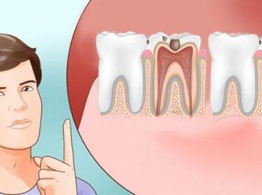 Dişiniz Ağrıdığında Aslında Size Bu Organınızda Sorun Var Demeye Çalışıyor