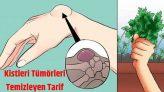 İltihaplı Eklemleri, Kist ve Tümörleri Temizleyen Kür