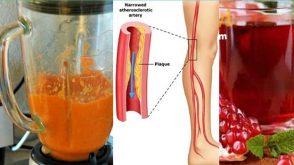 Damar Tıkanıklığına Karşı doğal tedavi