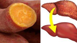 Karaciğer Yağlanmasının Nedenleri, Belirtileri Ve Tedavisi